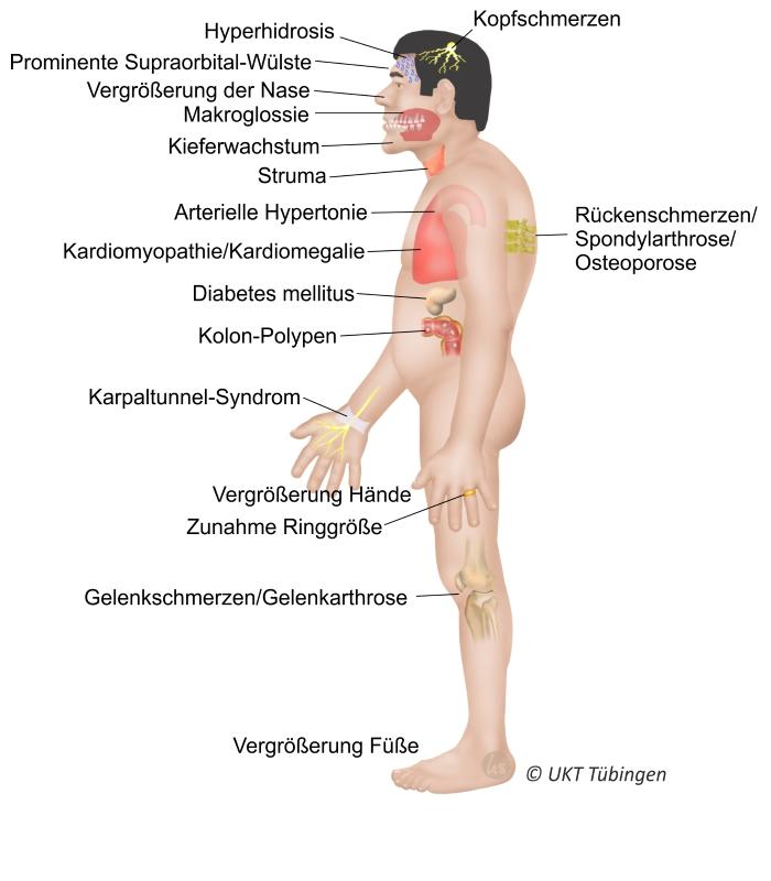 sehnerv tumor symptome