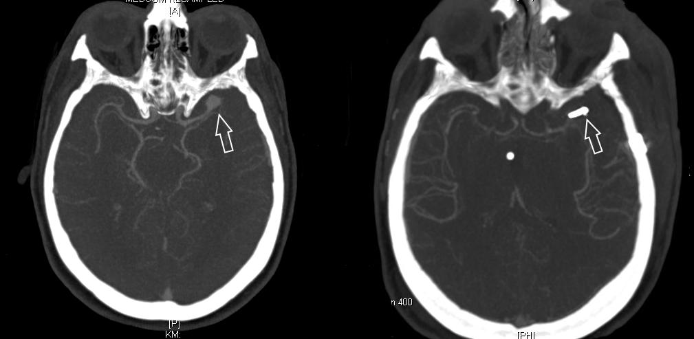aneurysma im kopf