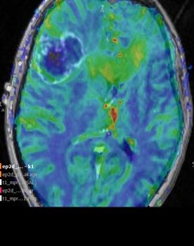 akustikusneurinom kliniken die operieren